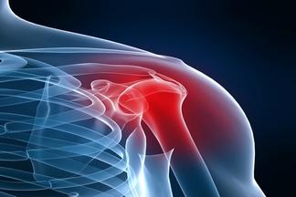 varios colores d4779 47155 Lesiones de hombro ⋆ Centre Holistic Terapias Naturales